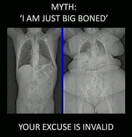 im just big boned xray